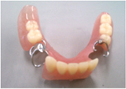 残っている歯への負担や入れ歯の違和感を少なくするための様々な工夫をしております